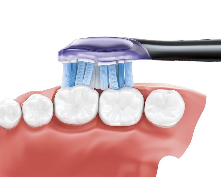 Bàn chải đánh răng điện Philips Sonicare DiamondClean Smart 9300 HX9903/01 4